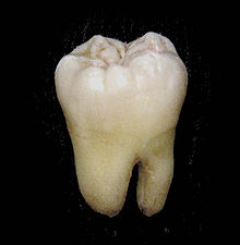 220px-Lower_wisdom_tooth